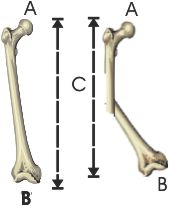 nfr femur length